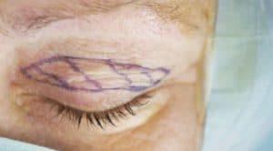 Anzeichnen der Hautlinien am Augenlid